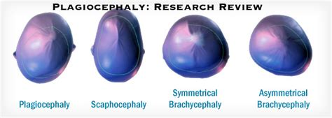Plagiocephaly in Children: Physical Therapy Treatment